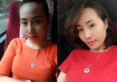 Sau thẩm mỹ nâng mũi, dù nhìn thẳng hay nghiêng ở mọi góc độ, các đường nét trên khuôn mặt Thanh Trang đều hài hòa và sắc nét.