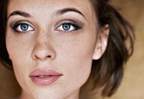 Tàn nhang thường xuất hiện tại những vùng da mỏng: quanh mắt, má, cổ...