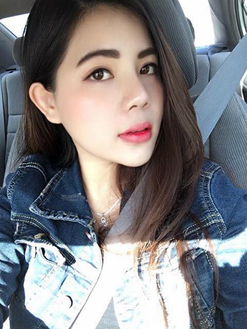 Dù sống ở Mỹ nhưng Quỳnh Đăng (23 tuổi) vẫn quản lý một nhà hàng tại Việt Nam, vì thế cô nàng thường xuyên di chuyển giữa hai nước. Trong đợt về nước lần này, Đăng quyết định nâng mũi S-line để vừa có được chiếc mũi Tây cao thẳng, vừa đổi vận trong kinh doanh.