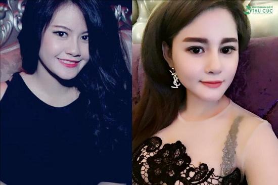 Quả thực không thể phủ nhận phẫu thuật thẩm mỹ đã giúp khuôn mặt hot girl 9X Sài Gòn thanh thoát, sang chảnh và Tây hơn. (Lưu ý: Hiệu quả thẩm mỹ có thể khác nhau tùy theo cơ địa mỗi người).