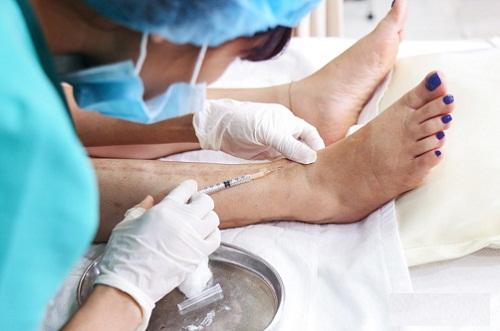 Hình ảnh khách hàng trị sẹo lồi bằng cách tiêm sẹo tại Thu Cúc