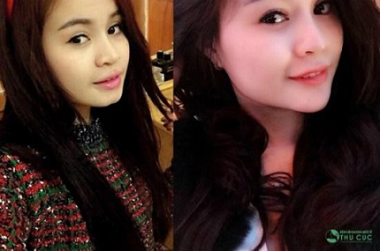 Hoàng Mai Phương (27 tuổi) là một trong số khách hàng từng trải nghiệm giải pháp làm đẹp tại Thu Cúc. Không hài lòng với chiếc cằm chẻ, ngắn, cô đã quyết định thực hiện phẫu thuật độn cằm V-line để có được chiếc cằm cân đối, hài hòa với gương mặt. (hiệu quả thẩm mỹ có thể khác nhau tùy theo cơ địa mỗi người)