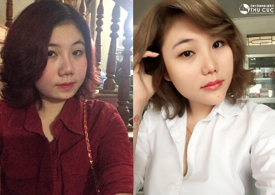 Vốn ưa các nét đẹp của sao Hàn, Bùi Ngọc Huyền (23 tuổi, Hà Nội) đã trở nên sắc sảo và cuốn hút hơn sau khi độn cằm V line. (lưu ý: hiệu quả thẩm mỹ có thể khác nhau tùy theo cơ địa từng người)