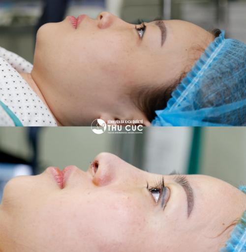 Hình ảnh chị Huyền Trang ngay sau khi thực hiện đồng thời nâng mũi và cắt mí chuẩn Hàn. (Lưu ý: Hiệu quả thẩm mỹ có thể khác nhau tùy theo cơ địa mỗi người)