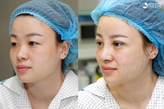 Sự khác biệt  sau phẫu thuật của cô nàng 8x khiến nhiều người ngạc nhiên. (Lưu ý: Hiệu quả thẩm mỹ có thể khác nhau tùy theo cơ địa mỗi người)