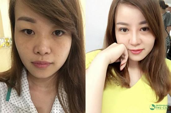 Lúc đầu, chị Trang cũng khá băn khoăn sợ sau khi phẫu thuật, mí và mũi bị sưng đau mất thẩm mỹ trong thời gian dài, khó lòng đối diện với đồng nghiệp. Thế nhưng, thẩm mỹ xong, chị khá bất ngờ vì không sưng (Hiệu quả thẩm mỹ có thể khác nhau tùy theo cơ địa mỗi người)