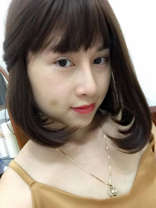 Cách đây 2 năm, Hồng Linh đã lựa chọn cắt mí chuẩn Hàn tại Thu Cúc, hiệu quả trên cả mong đợi khiến cô quyết tâm quay lại để thực hiện nâng mũi.