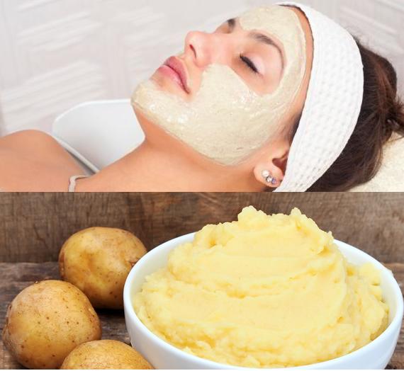 Khoai tây không chỉ tốt cho sức khỏe mà còn giúp trị nám da hiệu quả