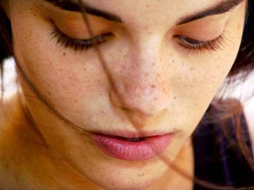Bị tàn nhang trên mặt gây ảnh hưởng đến thẩm mỹ và khiến chị em tự ti và mặc cảm