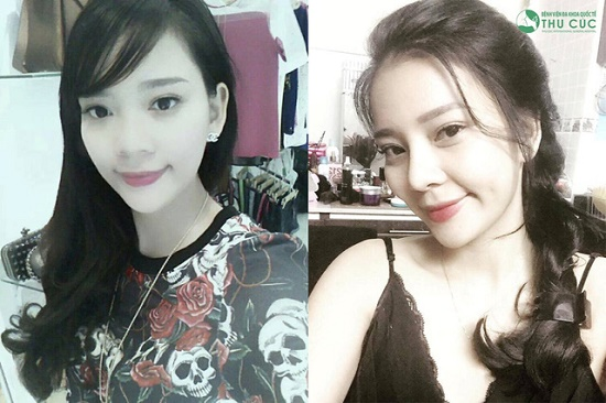 Là một cô gái năng động, trẻ trung, Phương Mai không ngần ngại chọn nâng mũi bọc sụn để làm đẹp ngoại hình. (Lưu ý: Hiệu quả thẩm mỹ có thể khác nhau tùy theo cơ địa từng người)