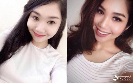 Sau khi thực hiện bấm mí Hàn Quốc BaBi Eyes, Thu Thảo khiến nhiều người bất ngờ bởi nhan sắc rạng rỡ, khuôn mặt cô nàng sắc sảo, cuốn hút hơn trước kia nhiều. (Lưu ý: hiệu quả thẩm mỹ có thể khác nhau tùy theo cơ địa từng người)