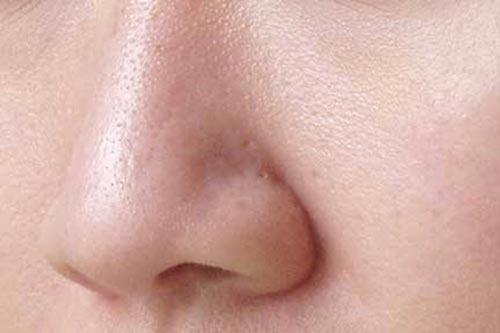 5 mẹo đơn giản làm se khít lỗ chân lông trên da mặt hiệu quả