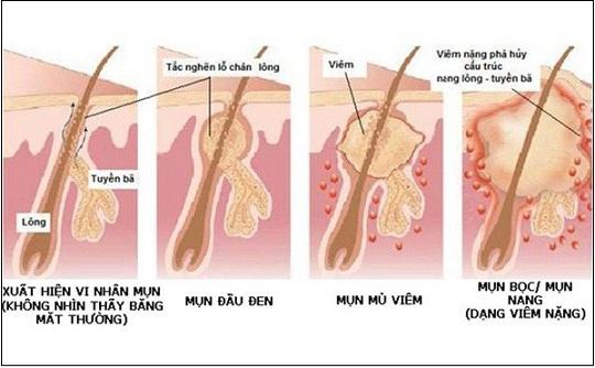 dấu hiệu nhận biết viêm nang lông