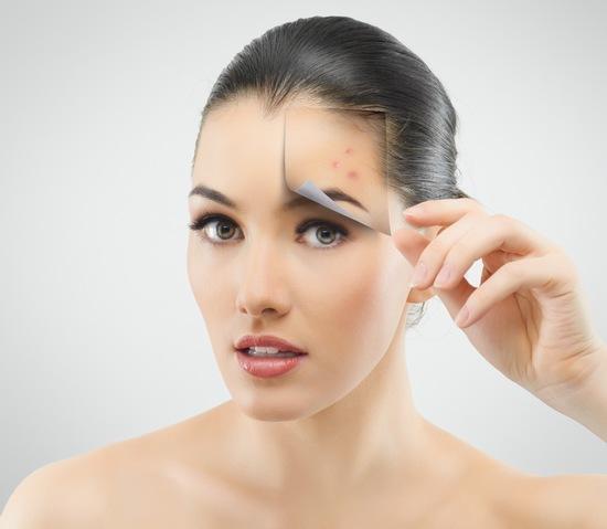 Sẹo thâm xuất hiện trên mặt là hậu quả do mụn để lại, nếu không có biện pháp can thiệp thì sẹo thâm sẽ tồn tại trên da rất lâu.