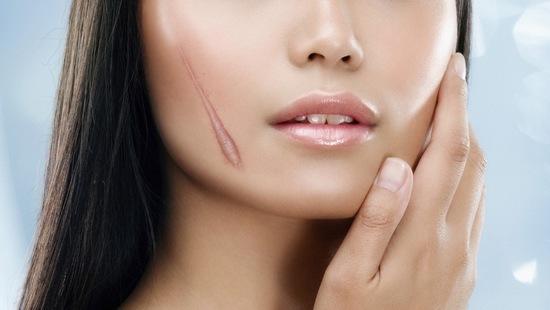 Quá trình liền da sau một số tổn thương rất có thể sẽ để lại sẹo lồi.