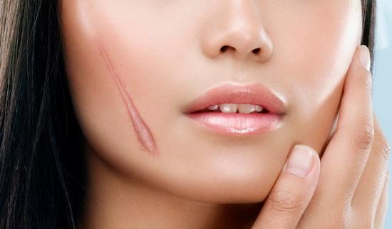 Bình thường các vết sẹo lồi tồn tại ở hình dạng, kích thước giống như vết thương nhưng lồi lên trên bề mặt da.