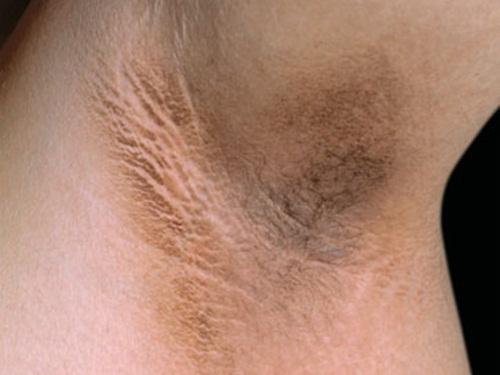 bạn đã biết cách tẩy lông nách không đau không thâm da