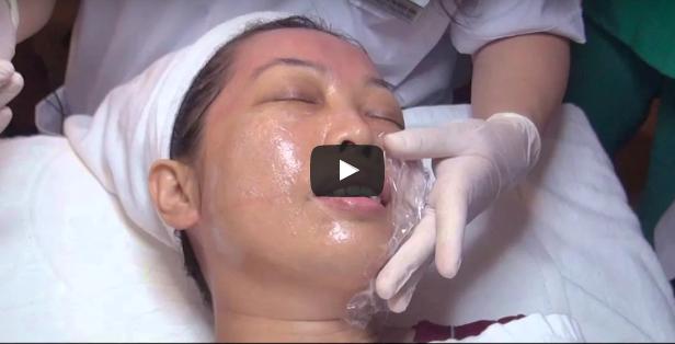 Căng da và điều trị sẹo lõm thực tế bằng lăn vi kim tại Thu Cúc