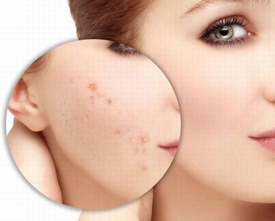 Đặc điểm của sẹo thâm là tạo ra vùng da có màu sậm hơn so với các vùng da khác nên khiến làn da không được mịn màng, không đều màu và loang lổ.
