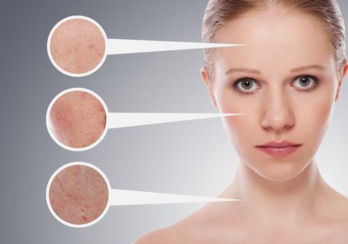 Da dầu không những khó chăm sóc mà còn gặp nhiều khó khăn trong điều trị sẹo.