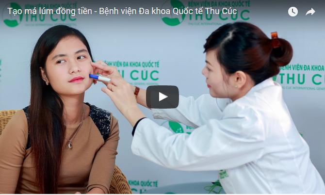 Tạo má lúm đồng tiền – Thẩm mỹ Thu Cúc Sài Gòn