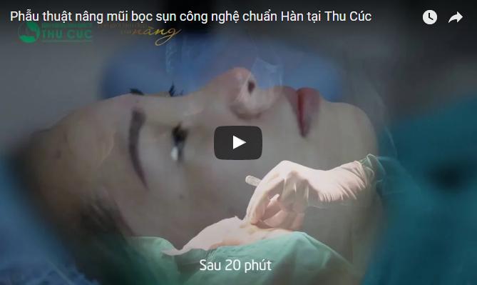 Phẫu thuật nâng mũi bọc sụn công nghệ chuẩn Hàn tại Thu Cúc