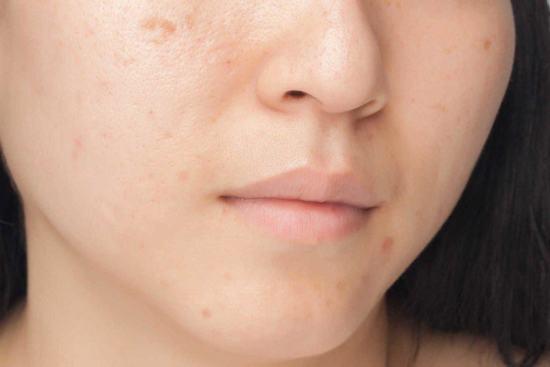 Có nhiều nguyên nhân gây nên sẹo lõm trên da, trong đó nguyên nhân lớn nhất là do các nốt mụn để lại.