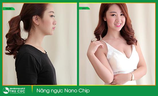 Dịch-vụ-Nâng-ngực-Nano-Chip-1