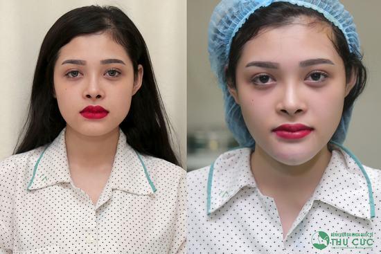 Làn da trắng min, cằm V line chuẩn thời thượng, độ xinh đẹp của Phương Chi không hề kém cạnh các cô gái xứ Hàn.(Lưu ý: Kết quả có thể khác nhau tùy cơ địa từng người)
