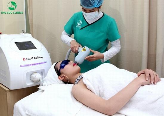 Tại Thu Cúc Sài Gòn, triệt lông mặt được thực hiện bằng phương pháp Laser Diode.