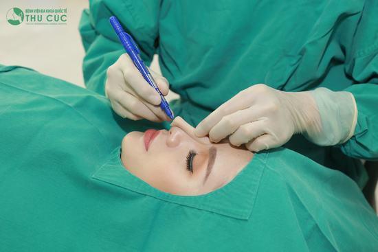 Nâng mũi Liftderm S 5D thực hiện theo quy trình chuẩn của Bộ Y tế