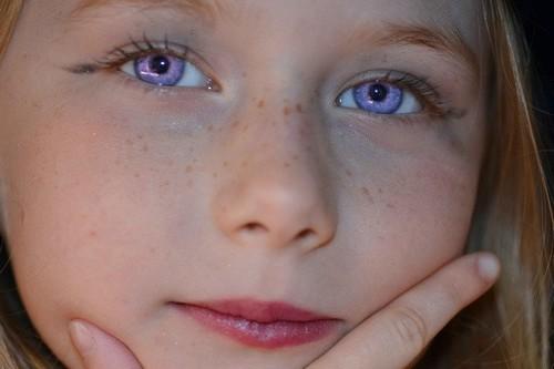 Đôi mắt nhợt nhạt khiến nhiều chị em tự ti về ngoại hình của mình.