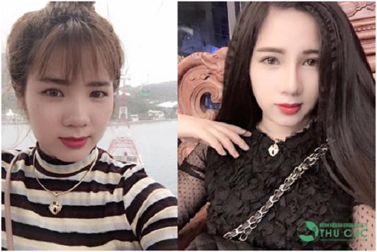 9X Lào Cai thay đổi bất ngờ nhờ chọn đúng dịch vụ thẩm mỹ