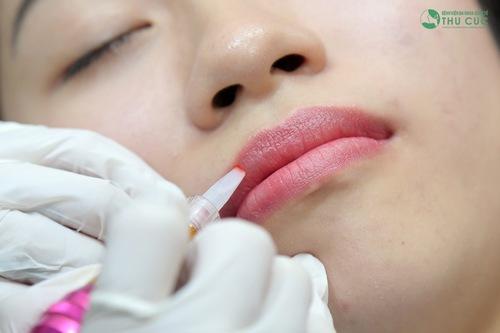 Để thực hiện phun môi pha lê các chuyên gia sẽ sử dụng thiết bị phun xăm siêu vi hạn chế tối đa xâm lấn, tổn thương vùng môi.