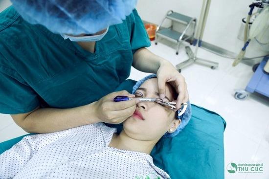 Lý giải cơn sốt phẫu thuật thẩm mỹ cắt mí mắt 2017