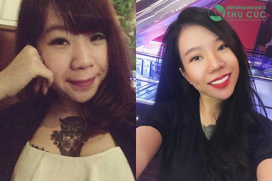 Cô gái Lương Thanh Mai với nếp mí mới cực xinh. Theo các bác sĩ tại Bệnh viện Thu Cúc, bản chất của phương pháp này là sẽ loại bỏ bớt da chùng, mỡ thừa ở mí trên, đồng thời tái tạo đường mí mới sâu, rõ nét và phù hợp gương mặt.