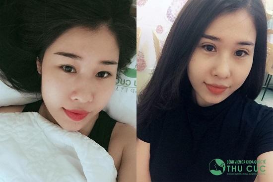 Chỉ với 45 phút phẫu thuật, cô bạn Nguyễn Kim Ngân đã sở hữu đôi mắt 2 mí tươi trẻ. Cũng bởi lý do này mà phương pháp cắt mí trở nên hot hơn bao giờ hết ở thời điểm hiện tại, khi mà Tết dương lịch và Tết Nguyên Đán đang cận kề.