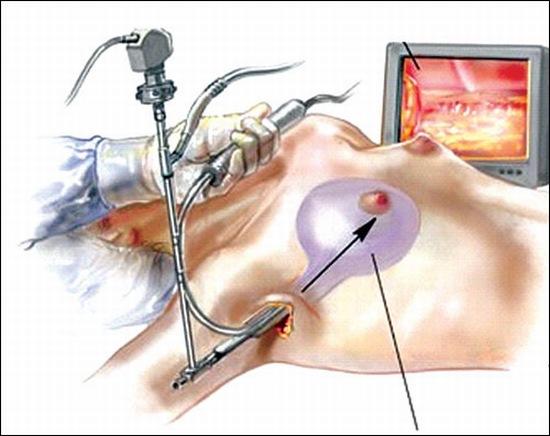nâng ngực nội soi tại hà nội
