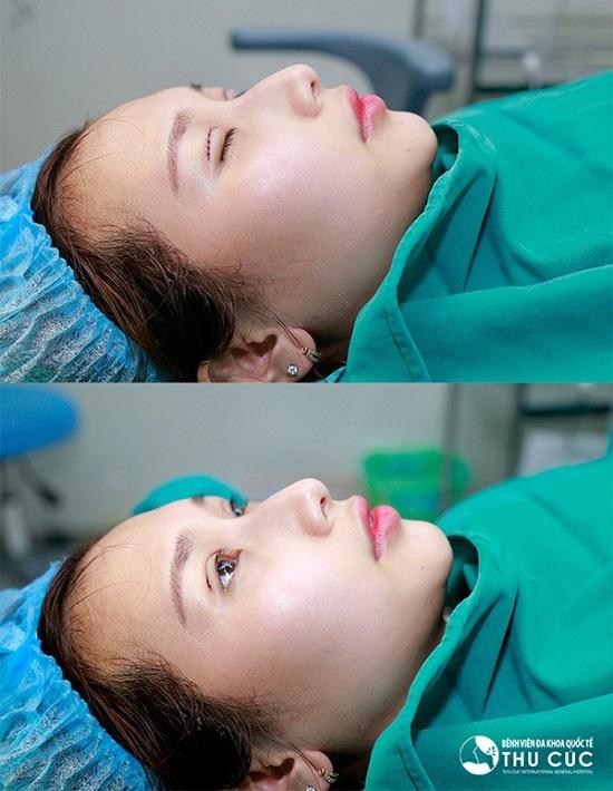 Hình ảnh ngay sau khi cắt mí của cô bạn Hải Lâm tại Bệnh viện Thu Cúc