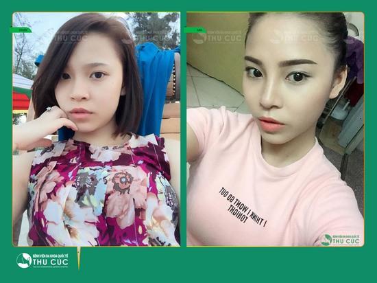 Ưu đãi hấp dẫn: Chỉ từ 7,8 triệu đồng sở hữu ngay dáng mũi đẹp chuẩn Hàn