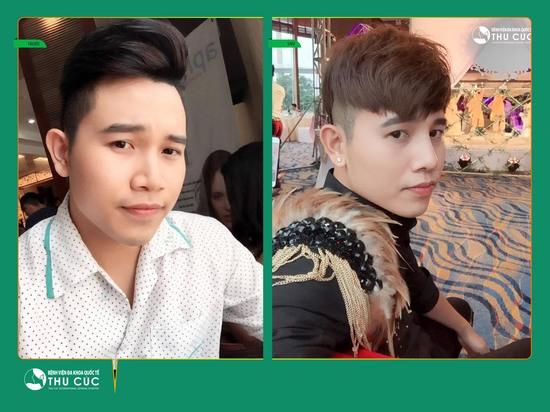 Các phương pháp nâng mũi tại Thu Cúc Sài Gòn thích hợp cho cả nam và nữ (Lưu ý: Kết quả tùy thuộc cơ địa mỗi người)