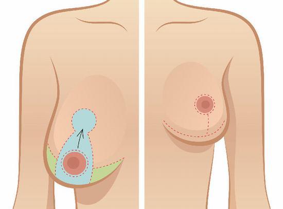 Nâng ngực chảy xệ bằng nội soi – Bí quyết giúp chị em lấy lại khuôn ngực đẹp cân đối