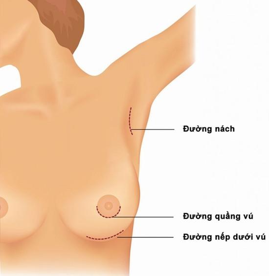 1001 điều cần biết về nâng ngực túi giọt nước nội soi đường nách
