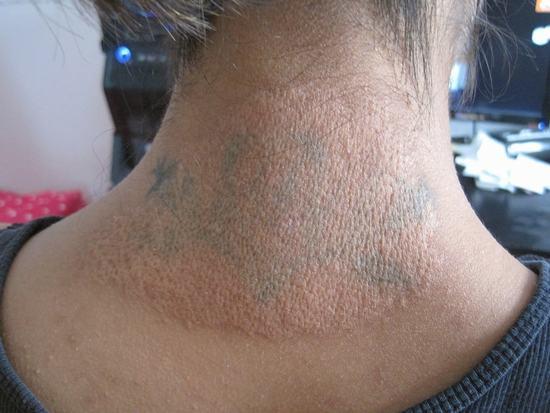 Tuy nhiên phương pháp này sẽ khiến da bị tổn thương rất nghiêm trọng