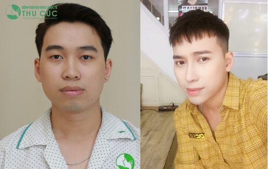 Biết bao ca phẫu thuật thẩm mỹ biến những cô gái, chàng trai thành mỹ nam, mỹ nữ. Ngay cả Top 3 Vietnam Idol Đinh Quang Đạt cũng nhờ đến nâng mũi Liftderm S 5D để hoàn thiện ngoại hình.
