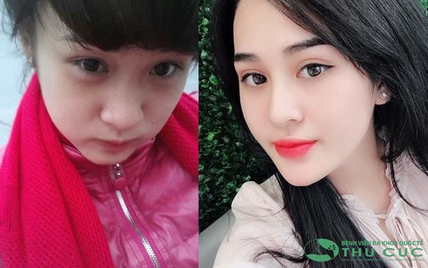 """Nguyễn Quỳnh Anh như được """"lột xác"""" sau khi nâng mũi"""