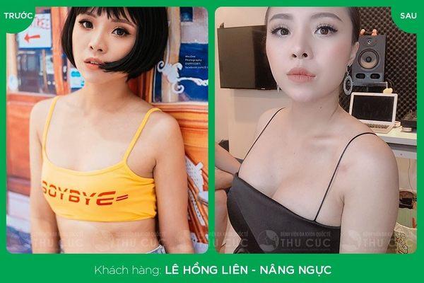 Khuôn ngực khách hàng sau khi nâng ngực Nano Chip cực kỳ tự nhiên (Lưu ý: Kết quả tùy thuộc cơ địa mỗi người)