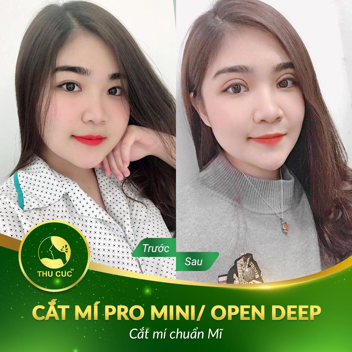 CAT-MI-10-4-2