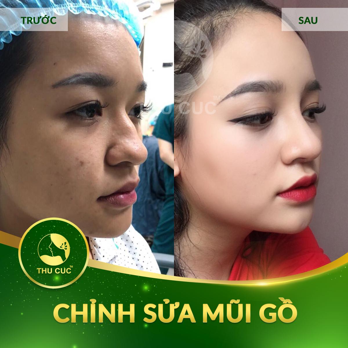 chinh-sua-mui-go-1