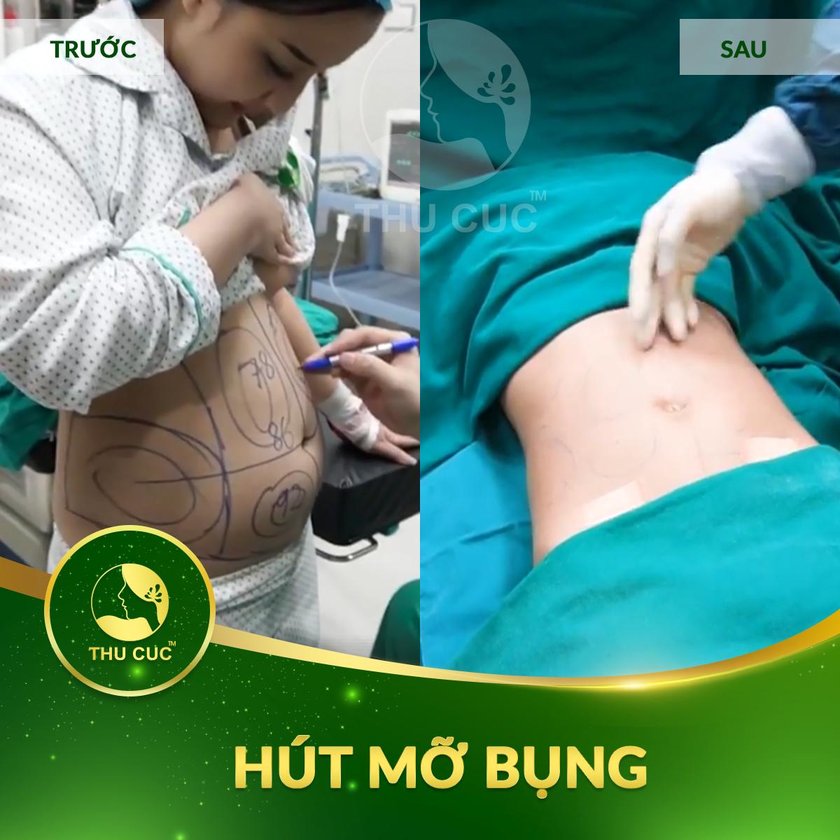 hut-mo-bung-2